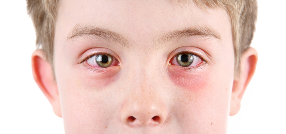 Kid With Eye Allergies