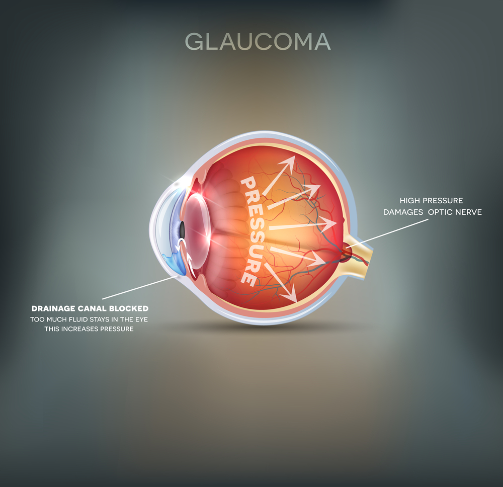 Glaucoma Screening and Treatment In Midland